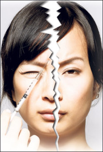Migraine relief with Botox injections