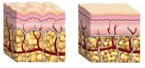 View of Skin and fat with and without cellulite formation