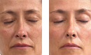 Cellular Regeneration Lift Treatment before and after