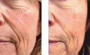 Densifying Anti-Wrinkle Treatment before and after