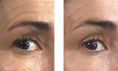 Eye Lift Treatment before and after