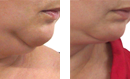 Face Slimming Lift Treatment before and after