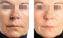 Glowing Complexion Lift Treatment before and after