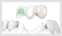 Crowns and Bridges for missing and broken teeth