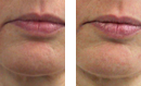 Collagen Activator Firming Treatment before and after